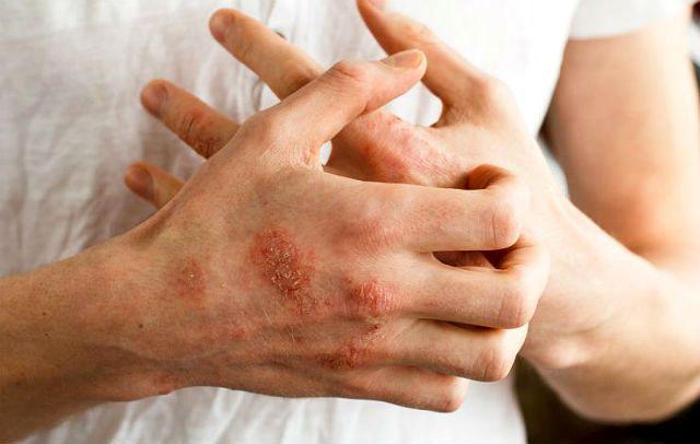 Аллергия на бенгальскую кошку - кожный зуд