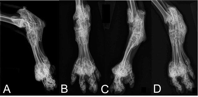Остеохондродисплазия на рентгене
