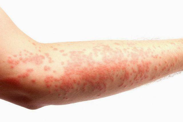 Аллергия на хомяка - крапивница