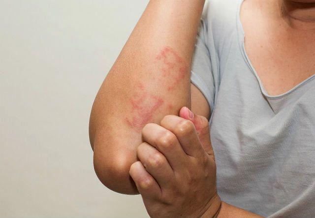 Аллергия на хомяка - зуд на коже